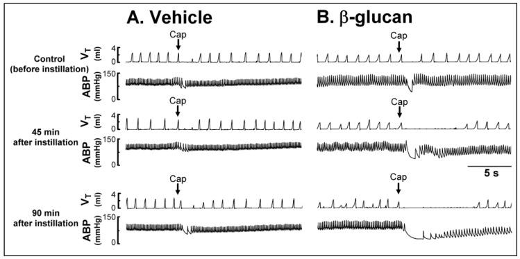 Experimental records illustrating the pulmonary chemoreflex responses to right-atrial injection of capsaicin (Cap, 1 μg/kg; arrows) before, 45 min after, and 90 min after intratracheal instillation of ( A ) vehicle (isotonic saline) or ( B ) β-glucan (5 mg/0.1 mL/rat) in two anesthetized, spontaneously breathing rats (vehicle: 305 g; β-glucan: 310 g). V T , tidal volume; ABP, arterial blood pressure. Please note that the pulmonary chemoreflex responses evoked by capsaicin were enhanced by the β-glucan instillation, but not altered by the vehicle instillation.