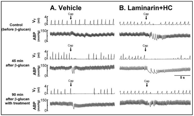 Experimental records illustrating the effect of treatment with ( A ) vehicle or ( B ) Laminarin (10 mg/kg, iv) + HC (8 mg/kg, iv) on the β-glucan-induced enhancement of pulmonary chemoreflex responses triggered by capsaicin injection (Cap, 1 μg/kg; arrows) in two anesthetized, spontaneously breathing rats (vehicle: 340 g; Laminarin + HC: 325 g). V T , tidal volume; ABP, arterial blood pressure. See the legend of Figure 1 for further explanation. Please note that the β-glucan-induced enhancement of pulmonary chemoreflex responses was abolished with Laminarin + HC treatment. HC, HC-030031.