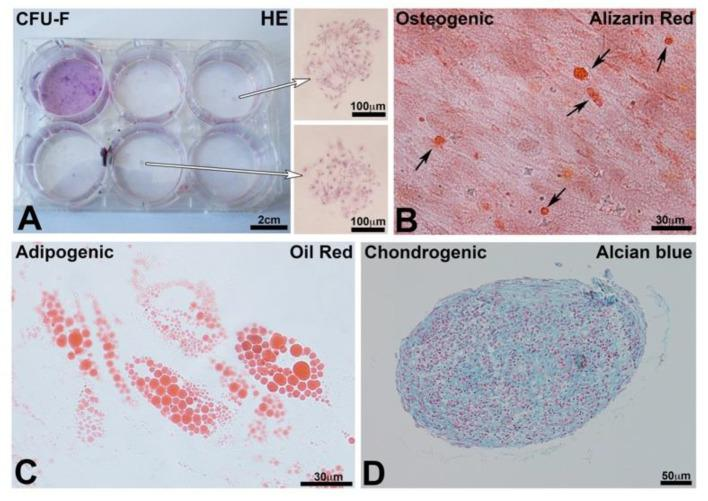 ( A ) Colony forming unit fibroblasts test (CFU-F): staining with HE of CFU formed after 14 days in culture. Arrows indicate 2 colonies. ( B ) Osteogenic differentiation after 21 days in the osteogenic medium; the differentiated cells produced nodules of mineralization stained with Alizarin Red S (arrows). ( C ) Adipocyte differentiation after 21 days in an adipogenic medium. Differentiated cells produced lipid vacuoles stained with Oil Red O. ( D ) Chondrocyte differentiation of the micromasses of hBM-MSCs after 21 days. Alcian Blue visualized the glycosaminoglycans (GAGs) specifically present in the cartilage.