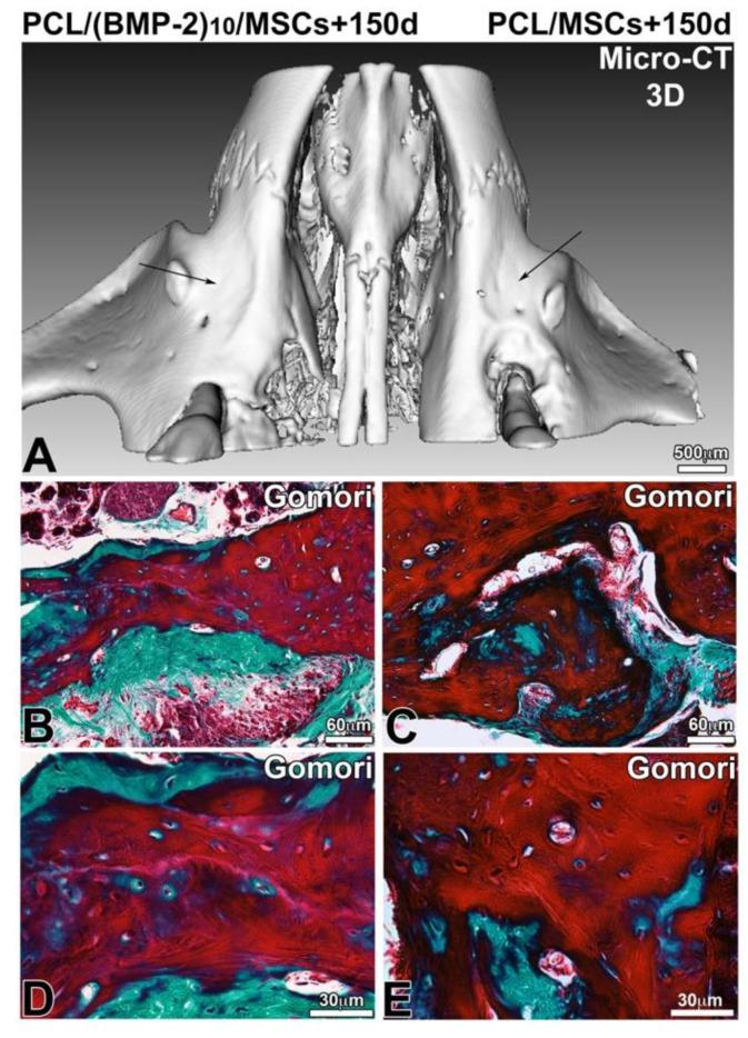 Observation of bone regeneration of the maxillary bone 150 days after implantation of a PCL membrane functionalized with BMP-2 ( A , B , D ) and non-functionalized ( A , C , E ) with hBM-MSCs. A 3D reconstruction ( A ) of frontal and sagittal sections of X-ray microtomography and after microtome cutting and Gomori trichrome staining ( B – E ).