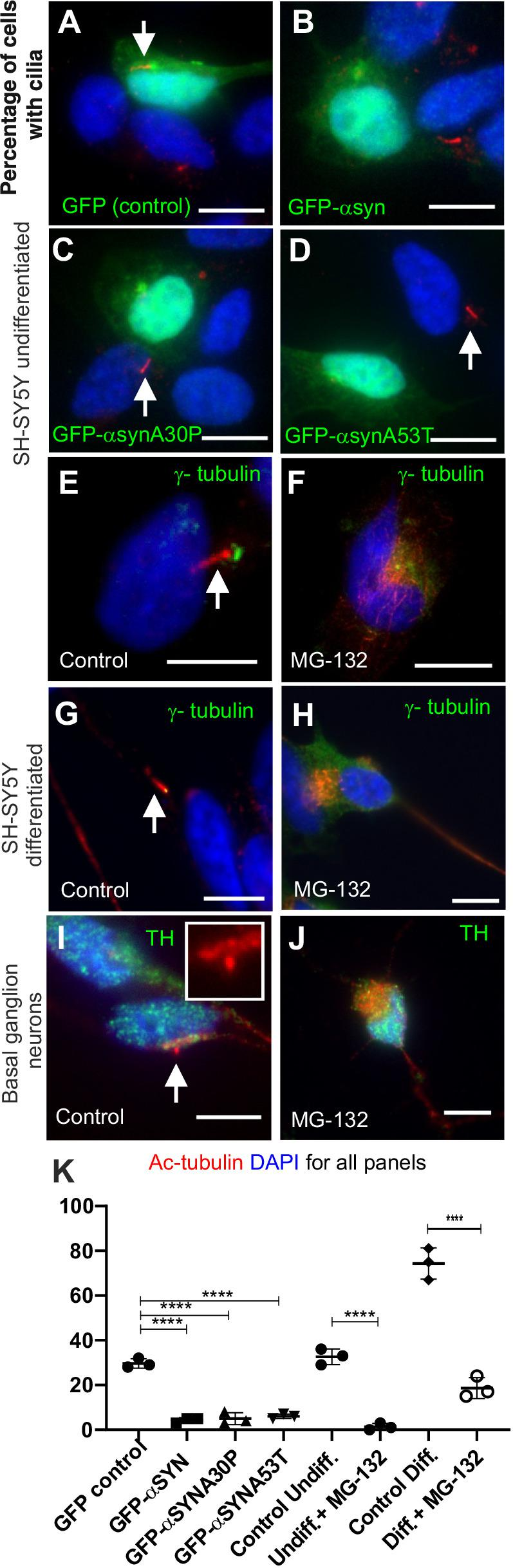 Aggresomes inhibit ciliogenesis. All panels: DNA/nuclei stained with DAPI (blue), green label is indicated in each panel, cilia (white arrows) can be identified by acetylated tubulin (red). (A–F) When transfected with a GFP-α-syn expression plasmid (α-syn and A30P and A53T familial mutants) or treated with MG132, cilia formation is inhibited in undifferentiated SH-SH5Y cells (B, C and D versus A, F versus E). In the presence of aggresomes differentiated SH-SY5Y cells are no longer able to form cilia (H versus G). When treated with MG132, TH-positive basal ganglion neurons are no longer able to form cilia (J versus I). The acetylated tubulin signal (red) in J and I is overexposed to ensure no cilia were missed. (K) Quantification of ciliation: GFP expressing versus GFP-α-syn expression, ( P =0.0003, by one-way ANOVA, 100 cells, n =3); undifferentiated SH-SY5Y, untreated versus MG132, ( P =0.0001, by Student's t -test, 100 cell, n =3); differentiated SH-SY5Y, untreated versus MG132, ( P =0.0001 by Student's t -test, 100 cells counted, n =3). Scale bars: 10 μM.