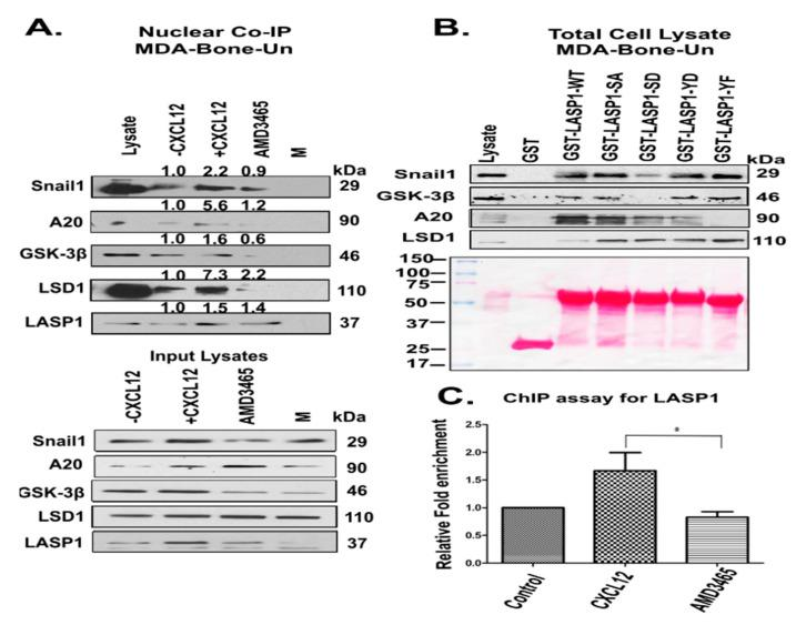 ( A ) Nuclear LASP1 co-immunoprecipitated with Snail1 and proteins that regulate the stability of Snail1 endogenously in response to CXCL12; ( A ) Co-immunoprecipitation of LASP1 with Snail1 and its regulators—Top panel: Serum-starved MDA-Bone-Un cells were stimulated with 20 nM CXCL12 for 20 min. In some conditions, Bone-Un cells were pre-incubated with the CXCR4 antagonist AMD-3465 for 30 min prior to the addition of the ligand CXCL12. LASP1 was immunoprecipitated with mouse anti-LASP1 (8C6 clone) antibodies from 250 µg of the nuclear extracts from MDA-Bone-Un cells and analyzed by 10% SDS-PAGE followed by immunoblotting for associated Snail1, A20, GSK-3β, and LSD1. 'M' represents the mock co-immunoprecipitation performed with isotype control IgG1 antibodies. Bottom panel: 15 µg of nuclear lysates were resolved by 10% SDS-PAGE, and immunoblotted for Snail1, A20, GSK-3β, LSD1 and LASP1 blot. ( B ) Differential association of phosphorylated forms of LASP1 to endogenous Snail1 and its regulators—1.5 nmol of each of the GST, LASP1-WT and its phosphomimetic (S146D and Y171D) and phosphonull (S146A and Y171A) mutants fused to GST were incubated with 250 µg of nuclear lysate derived from CXCL12-stimulated MDA-Bone-Un cells. The differential association of endogenous Snail1, GSK-3β, A20 and LSD1 with full length LASP1-WT and its mutants were analyzed by 10% SDS-PAGE, followed by immunoblotting; n = 3. ( C ) Occupancy of LASP1 at the E-cadherin promoter region—Serum-starved MDA-Bone-Un cells were stimulated with 20 nM CXCL12 for 20 min. In some conditions, Bone-Un cells were pre-incubated with the CXCR4 antagonist AMD-3465 for 30 min prior to the addition of the ligand CXCL12. The chromatin fragments were prepared and subjected to chromatin immunoprecipitation (ChIP) analysis. The data from quantitative, real-time PCR were statistically analyzed and shown as the Mean ± SD, n = 3 independent biological repeats; * p