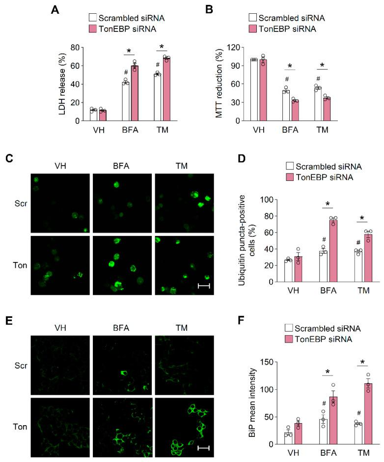 Tonicity-responsive enhancer-binding protein (TonEBP) prevents the accumulation of unfolded proteins. ( A , B ) MIN6-M9 cells were transfected with scrambled siRNA or TonEBP-targeted siRNA, and then treated with vehicle (VH), brefeldin A (BFA; 20 μM), or tunicamycin (TM; 1 μg/mL). Cell viability was assessed by the LDH release ( A ) and MTT reduction ( B ) after 24 h. ( C ) Cells were transfected with scrambled siRNA (Scr) or TonEBP-targeting siRNA (Ton) and then treated as above. Ubiquitin was visualized with an anti-ubiquitin antibody by immunostaining. ( D ) Percent of ubiquitin puncta positive cells were counted from 100 cells in each group. ( E ) Cells were transfected and treated as in ( C ). BiP was detected with an anti-BiP antibody by immunostaining. ( F ) Percent of BiP positive cells were counted from 100 cells in each group. VH, vehicle. Data (mean + SD) were from three independent experiments ( n = 3) each with more than three replicates. # p