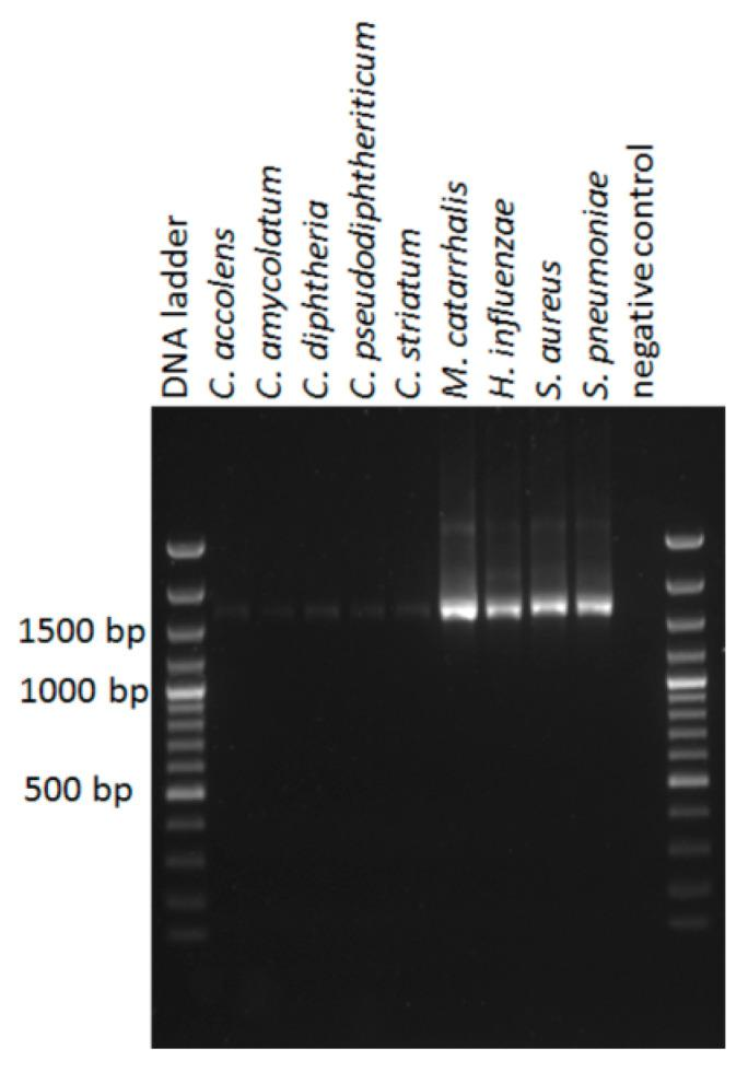 Agarose gel with 16S rRNA gene amplicons. Total DNA was isolated from pure bacterial cultures in a similar manner as the isolation of DNA from the nasal swab samples; the DNA concentration was determined by picogreen and a PCR was performed as described for nanopore sequencing using equal amounts of template DNA, with the exception that 30 PCR cycli instead of 25 cycli were used.