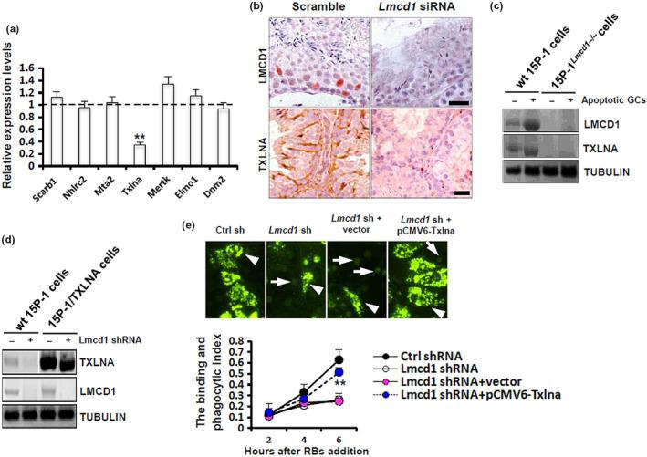 Lmcd1 depletion compromises TXLNA‐mediated testicular phagocytosis. (a) Expression levels of different key factors essential for testicular phagocytosis in Lmcd1 siRNA‐treated testis were determined using RT‐qPCR. ** p