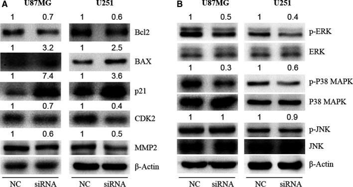 The genes regulated by KLHDC8A in glioma cells. A, Proteins related to apoptosis (BAX and Bcl2), cell cycle (p21 and CDK2) and migration (MMP2) were detected in U87MG and U251 cells after KLHDC8A knockdown. The U87MG and U251 cells which transfected with NC and KLHDC8A siRNA for 48 h were harvested. Then, Western blot detected the expression of BAX, Bcl2, p21, CDK2 and MMP2 in U251 cells. B, The levels of MAPK signalling proteins (p‐ERK, p‐P38 MAPK and p‐JNK) in KLHDC8A knockdown cells were detected. Numbers on up of bands are fold change of level relative to corresponding negative control. β‐Actin was used as loading control. NC, negative control; siRNA, KLHDC8A gene silencer