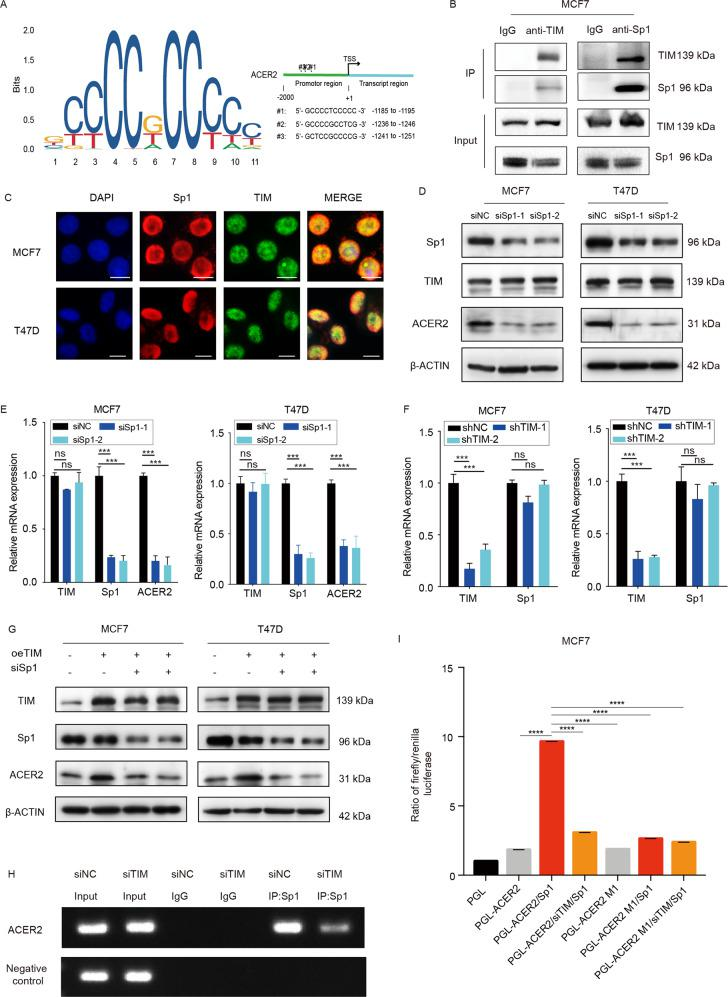 TIM, as coactivator of Sp1, transcriptionally regulates ACER2 in breast cancer cells. a Jasper database predicts the potential Sp1 binding sequences in ACER2 promotor region. b Co-immunoprecipitation of TIM and Sp1 in MCF7 cells. c Immunocytochemistry staining of TIM and Sp1 in MCF7 and T47D cells. TIM is shown in red, Sp1 is shown in green and cell nuclei were stained with DAPI in blue. Scale bar is 10 mm. d TIM and ACER2 expression level of MCF7 and T47D cells in Sp1 knockdown and control groups. e Relative mRNA levels of TIM, Sp1 and ACER2 in MCF7 and T47D cells knockdown by siSp1. Values are means ± SD, ns: no significance; *** p