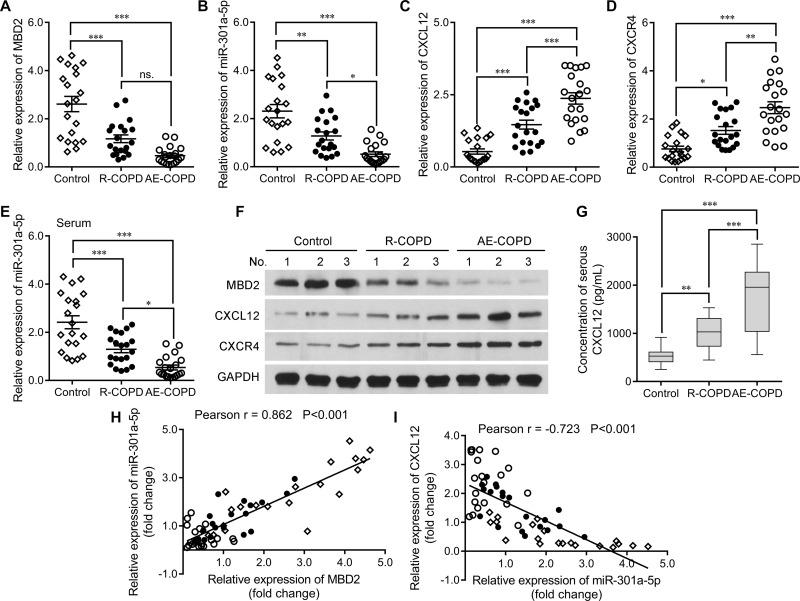 The levels of MBD2, miR-301a-5p, CXCL12, and CXCR4 expression in blood samples from COPD patients. A qRT-PCR analysis was performed to measure the levels of ( A ) MBD2, ( B ) miR-301a-5p, ( C ) CXCL12, and ( D ) CXCR4 expression in PBMCs isolated from control (n = 20), R-COPD (n = 20), and AE-COPD (n = 20) subjects. ( E ) Serum miR-301a-5p expression levels in the above three groups were analyzed using qRT-PCR. ( F ) The relative levels of MBD2, CXCL12, and CXCR4 protein expression in serum samples from the above three groups were examined by Western blotting. ( G ) ELISA assays were conducted to analyze serum CXCL12 concentration levels. Data are expressed as the mean ± SD. *P