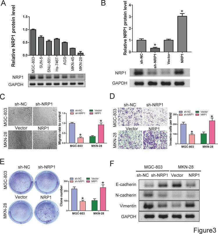 Establishment of NRP1 overexpression and knockdown cell lines ( A ) Analysis of NRP1 expression in different cell lines using Western blot. ( B ) Detection of protein levels of NRP1 in gastric cancer cell lines after NRP1 overexpression of knockdown. ( C ) Wound healing was used to detect cell migration after ectopic alteration of NRP1 expression. ( D ) Transwell was performed to detect cell invasion after ectopic alteration of NRP1 expression. ( E ) Cell proliferation was analyzed by colony formation. ( F ) Protein levels of E-cadherin, N-cadherin and Vimentin were detected by Western blot. Differences were considered significant at P