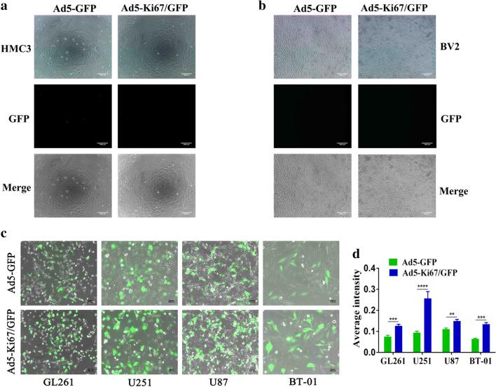 Characteristics of novel constructed oncolytic adenovirus. a , b Recombinant oncolytic adenovirus (MOI = 40) does not infect microglial HMC3 and BV2 cells (×50, scale bars = 1000 µm). c The capacity of recombinant oncolytic adenovirus to infect GBM cells. Representative photomicrographs were obtained from GL261, U251, U87, and primary cells BT-01 that treated with Ad5-GFP and Ad5-Ki67/GFP at an MOI of 40 for 72 h (×50, scale bars = 1000 µm). d Quantification of the average intensity difference in GBM cells treated with Ad5-GFP and Ad5-Ki67/GFP for 72 h using Image Pro Plus. (n ≥ 3) *P