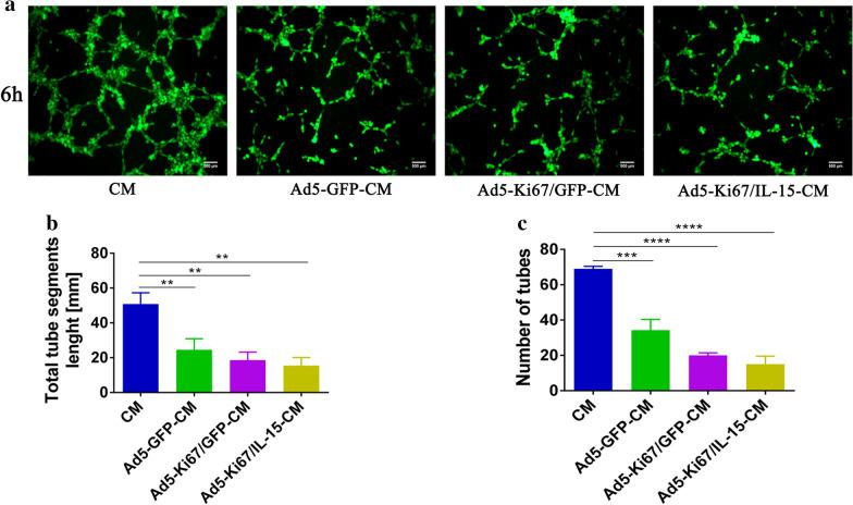 Tube formation capacity of HUVECs incubated in different U251 conditioned media. a Glioma cells U251 were respectively treated with Ad5-GFP, Ad5-Ki67/GFP, Ad5-Ki67/IL15 (MOI = 40) for 72 h, and at which time different U251 conditioned media (Ad5-GFP-CM, Ad5-Ki67/GFP-CM and Ad5-Ki67/IL15-CM) were collected. Angiogenic capacity of HUVECs cultured by CM, Ad5-GFP-CM, Ad5-Ki67/GFP-CM and Ad5-Ki67/IL15-CM (MOI = 40) for 6 h on Matrigel (×100, scale bars = 500 µm). CM represented the untreated U251 conditioned medium. b, c Total segments length and quantification of number of tubes generated by HUVECs incubated with different conditioned media. *P