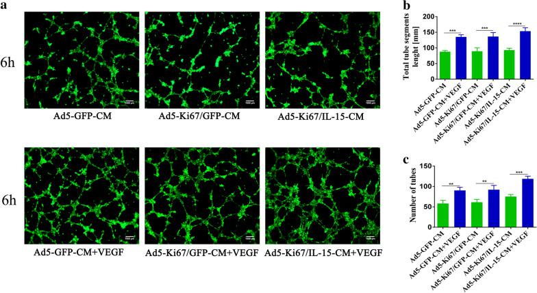 Tube formation capacity of HUVECs incubated in different U251 conditioned media. a Angiogenic capacity of HUVECs cultured in Ad5-GFP-CM, Ad5-Ki67/GFP-CM, Ad5-Ki67/IL15-CM, Ad5-GFP-CM + VEGF, Ad5-Ki67/GFP-CM + VEGF and Ad5-Ki67/IL15-CM + VEGF (MOI = 40) for 6 h on Matrigel (×100, scale bars = 500 µm). b, c Total segments length and quantification of number of tubes generated by HUVECs incubated with different culture conditions. *P