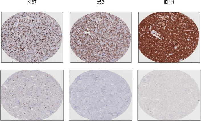 Representative images of Immunohistochemistry for molecular markers of glioblastoma. Images for Ki67 (high above and low below), p53 (positive staining above and negative below), and IDH1 (positive staining above and negative below) are presented.
