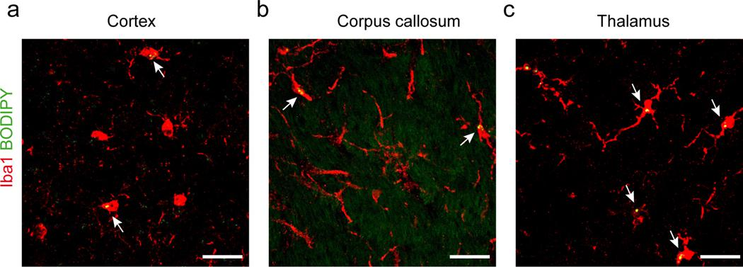 Lipid droplet containing microglia in the cortex, corpus callosum, and thalamus of GRN −/− mice. a - c , Representative confocal images of BODIPY + (lipid droplets) and Iba1 + (microglia) in the cortex ( a ), corpus callosum ( b ), ( c ) and thalamus from 9-month-old male GRN −/− mice. BODIPY + /Iba1 + cells were frequently found in the thalamus and were detected to a lesser extent in cortex and corpus callosum. Data were replicated in at least three independent experiments.