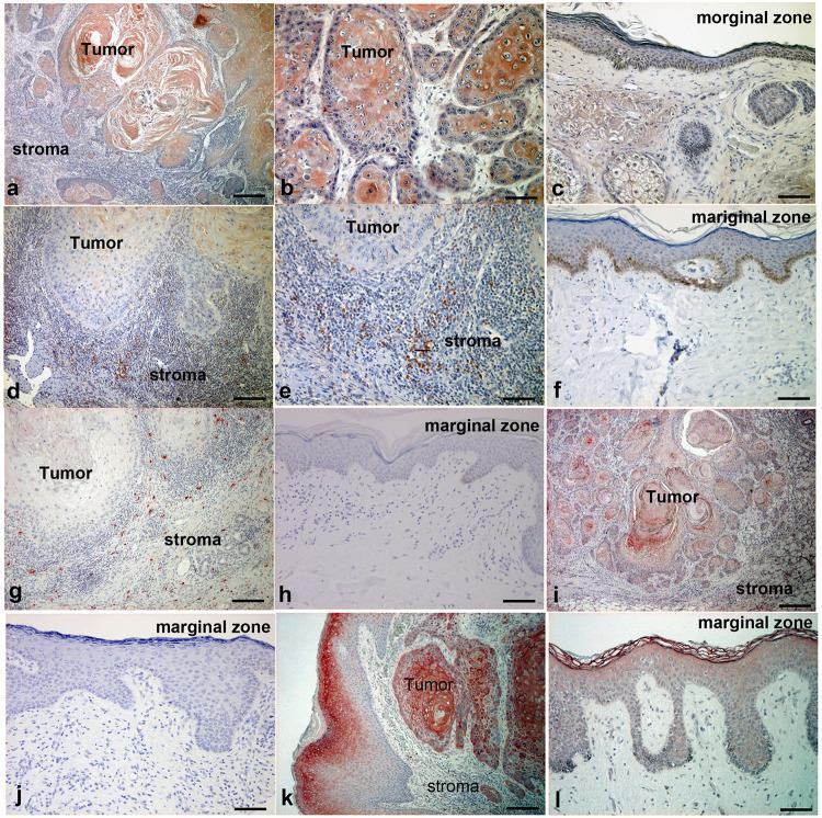 Immunohistochemical analysis of CCL20, IL-23, IL-17, IL-36γ, and IL-17R expression in lesion-affected skin of cSCC. Sections of cSCC lesions were deparaffinized and stained using anti-CCL20 (a–c) , anti–IL-23 (d–f) , anti–IL-17 (g,h) , anti–IL-36γ (i,j) , or anti–IL-17R (k,l) antibodies. Sections were developed with liquid permanent red. Scale bars, 100 μm. Representative specimens from 12 cases of cSCC are shown. Scale bars, 50 μm (b,i) , 100 μm (c,e–l) , and 200 μm (a,d) .