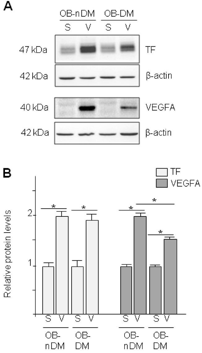 TF and VEGF expression in in Subcutaneous or Visceral Derived ASCs from Diabetic/No Diabetic Patients with Obesity. ( A ) TF and VEGFA expression in ASCs obtained from SAT (S) or VAT (V) in obese patients (OB) in presence (DM) or absence (nDM) of diabetes. Western blot analysis of TF and VEGFA proteins in ASCs. To test for equal loading Western blots were reproved by β-actin; ( B ) Quantitative analysis of TF and VEGFA to β-actin relative levels.