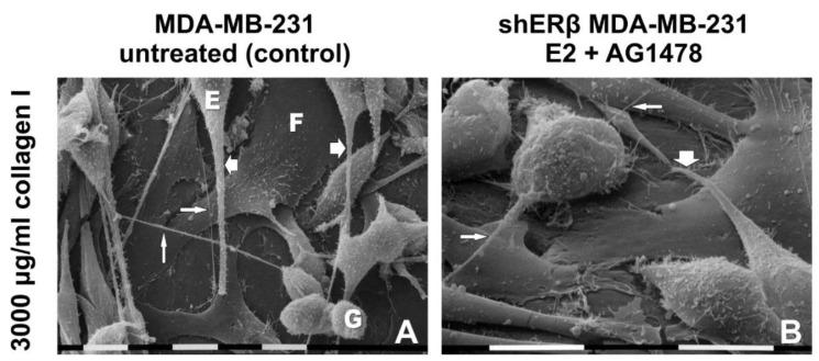 ( A ) Untreated MDA-MB-231 cells cultivated on a Millipore filter coated by 3000 µg/mL type I collagen: Flattened-polygonal cells (F) adhering to the collagen substrate are covered by globular (G) and elongated-fusiform (E) cells exhibiting microvilli and EVs. Long conical-shaped filopodia (large arrows) showing microvilli and EVs on their surface originate from elongated-fusiform cells. Straight intercellular TNTs (narrow arrow) are also present. Bar = 10 µm. ( B ) shERβ MDA-MB-231 cells treated with both E2 and AG1478 (mix) and cultivated on a Millipore filter coated by 3.0 mg/mL type I collagen: Globular and elongated cells showing microvilli on the cytoplasmic surface gro w on flattened-polygonal cells just adhering to the collagen layer. A conical filopodia (large arrow) develops from an elongated-fusiform cell. Short straight intercellular TNTs (narrow arrows) are detectable. Bar = 10 µm.