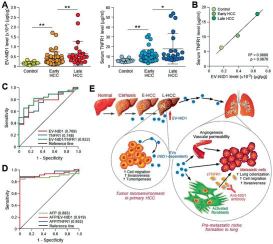 EV‐NID1 and serum <t>TNFR1</t> levels correlate with the tumor stage of HCC. A) ELISA analysis of NID1 expression in circulating EVs obtained from sera collected from individuals without liver disease (Control) ( n = 12), patients with early ( n = 43) and late stage ( n = 22) HCC (left). ELISA analysis of serum TNFR1 in the same subjects (right). ELISA was performed in duplicate. B) Correlation between EV‐NID1 and serum TNFR1 levels determined in (A) using Pearson correlation test. C) ROC curves of EV‐NID1, serum TNFR1, and combined EV‐NID1 and serum TNFR1 for discriminating control subjects and patients with early stage HCC. D) ROC curves of AFP, AFP in combination with EV‐NID1, or serum TNFR1 for discriminating control subjects and patients with early stage HCC. E) Proposed signaling mediated by EV‐NID1. The EV‐NID1 level increases with HCC development. EV‐NID1 derived from metastatic HCC cells promotes liver tumor development and distant metastasis to the lungs. EV‐NID1 increases pulmonary vessel leakiness, angiogenesis, and colonization of cancer cells to the lungs and activates pulmonary fibroblasts to secrete TNFR1, which in turn promotes HCC cell growth and motility. ROC, receiver operating characteristic. Data are represented as the mean ± SEM; : p