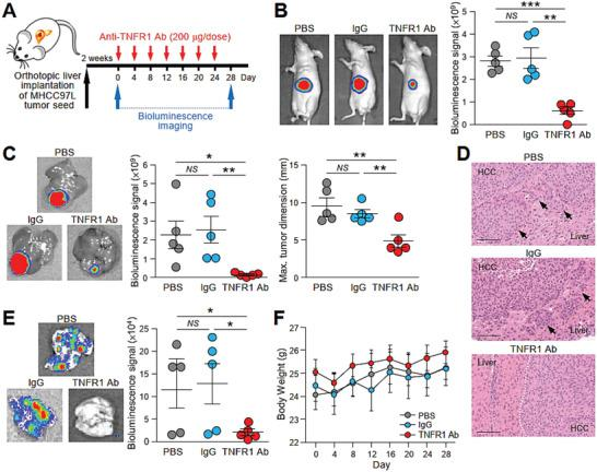 Treatment with TNFR1 neutralizing antibody effectively inhibits tumor growth and metastasis in mice implanted with metastatic tumor seed. A) Schematic diagram of the treatment regimen applied to mice implanted with luciferase‐labeled MHCC97L cells in the liver. Mice were administered PBS, IgG, or anti‐TNFR1 antibody (200 µg) via peritoneal injection every 4 days for 28 days ( n = 5). B) Bioluminescence imaging of animals at the end of the experiment. Quantification of the luciferase signal is shown. The size of the liver tumors was measured and plotted. C) Ex vivo bioluminescence imaging of livers. Quantification of the luciferase signal is shown. D) Representative image of H E staining of liver tissues showing the boundary of tumors obtained from (C). Dotted line indicates the bulging growth fronts of liver tumor. Arrows indicate the cluster of tumors nearby the liver‐tumor boundary. Magnification, 20 ×; Scale bar, 100 nm. E) Ex vivo bioluminescence imaging of lungs. Quantification of the luciferase signal is shown. F) Body weight of the mice was measured twice a week and plotted against time. Data are represented as the mean ± SEM; : p