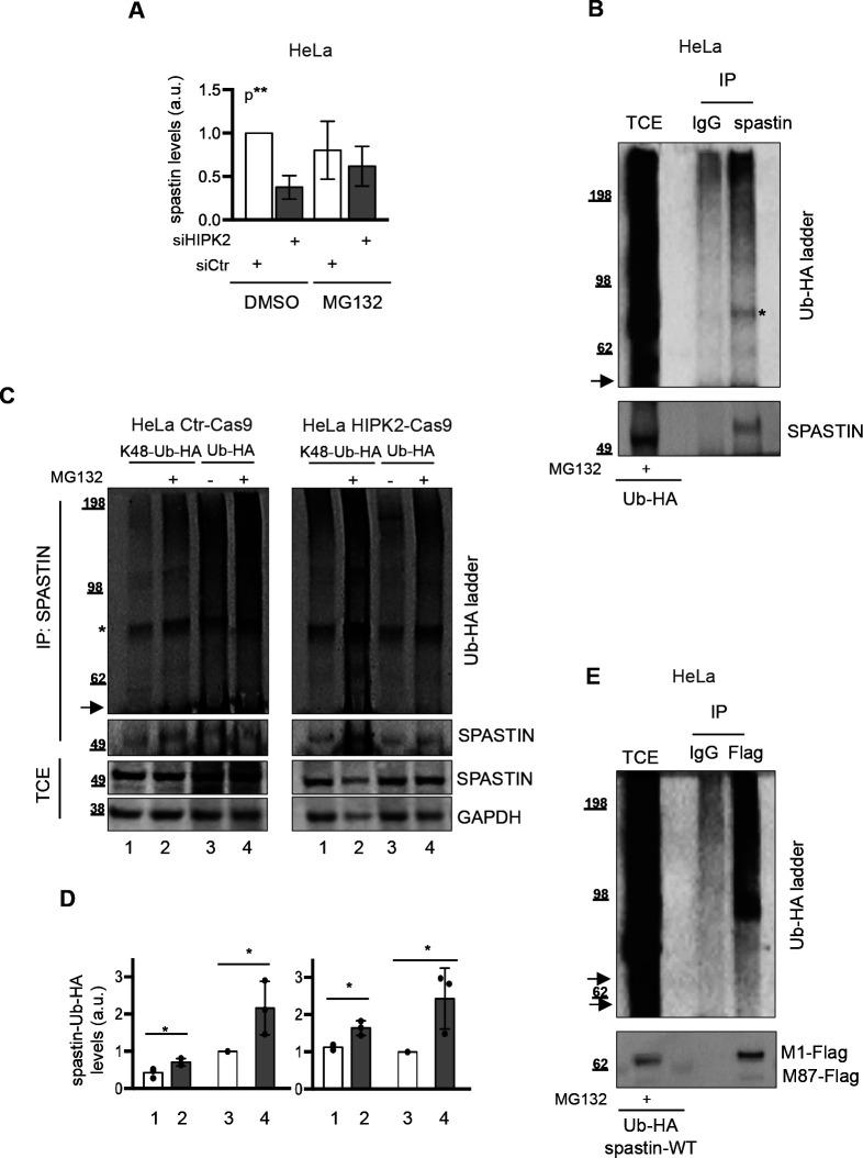 Spastin is K48-polyubiquitinated. (A) Data quantification of spastin/loading control levels by Western blot (WB) on total cell extract (TCE), relative to data shown in Fig 2B . Quantification was performed as in Fig 2A . Bars are mean ± SD of three independent experiments; Statistical differences, ANOVA test. (B) As in Fig 2D , HeLa cells were transfected with vector expressing Ub-HA and treated 24 h posttransfection with 20 μM MG132 for 8 h. TCE was immunoprecipitated with anti-spastin mouse monocolonal Ab, sp3G11/1. Mouse IgG were used as negative IP control. TCE and IPs were analysed by WB with anti-HA and anti-spastin Abs. The arrow indicates the position of the unmodified spastin and the asterisk indicates a non-specific band. (C, D) HeLa HIPK2-Cas9 and Ctr-Cas9 cells were transfected with vectors expressing HA-Ub or its derivative K48-Ub-HA (i.e., Ub with only K48, the other lysines are mutated in arginines) and treated 24 h post transfection with 20 μM MG132 or DMSO for 8 h. TCE were analysed by WB and IP as in Fig 2D . In (C), representative WB of three independent experiment is shown. The arrow indicates the position of the unmodified spastin and the asterisk indicates a non-specific band. In (D), relative spastin-Ub-HA levels were quantified and reported as in Fig 2C . Statistical differences, unpaired t test. (E) As in Fig 2F , HeLa cells were transfected with vectors expressing flag-myc tagged spastin in combination with Ub-HA and 24 h post transfection cells were treated with 20 μM MG132 for 8 h. TCE was immunoprecipitated with anti-Flag mouse monoclonal Ab. Mouse IgG were used as negative IP control. TCE and IPs were analysed by WB with anti-HA and anti-Flag Abs. The arrow indicates the position of the unmodified spastin.