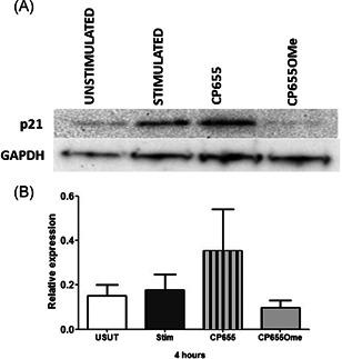 Effect of CP655 (7‐diethylamino‐ N ‐((5‐hydroxy‐6‐methyl‐4‐oxo‐1,4‐dihydropyridin‐3‐yl)methyl)‐ N ‐methyl‐2‐oxo‐chromen‐3‐carboxamide) treatment on p21 protein expression in CD4+ T cells. CD4+ T cells were isolated from peripheral blood mononuclear cells of healthy donors and either left unstimulated (USUT) or stimulated with anti‐CD3/CD28 beads (1:20) in the presence or absence of either CP655 (5 µM) or CP655OMe (5 µM). After 4 hours of culture, p21 expression was analyzed by Western blot analysis. A, Results from one representative experiment. B, Results represented as mean ± standard error of the mean from n = 4 individual donors