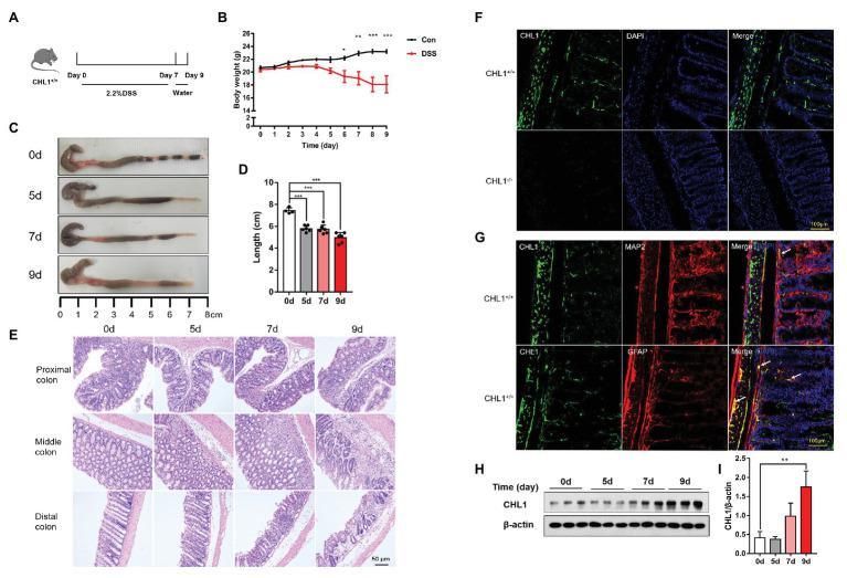 CHL1 expression was increased in dextran sulfate sodium (DSS)-induced colitis. (A) DSS-induced acute colitis mouse model. CHL1 +/+ mice had ad libitum access to sterile drinking water containing 2.2% DSS for 7 days, followed by normal drinking water for 2 days. The mice were euthanized on the 5th, 7th, and 9th days after the initiation of DSS treatment. (B) Body weight loss in the DSS-induced acute colitis mouse model ( * p