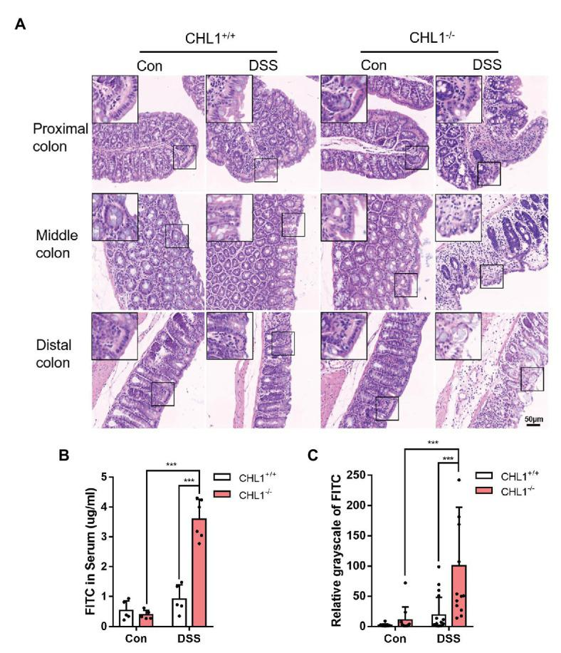 CHL1 deficiency exacerbated epithelial barrier damage in inflammatory bowel disease (IBD). (A) High magnification histological images of colonic tissue from CHL1 +/+ and CHL1 −/− mice with and without DSS treatment showed altered intestinal epithelial cellular shape in tissues from CHL1 −/− animals. Insets show examples of areas of the epithelium under ultrahigh magnification. (B) Intestinal permeability was measured by the appearance of orally administered FITC-labeled dextran in the serum of DSS-exposed CHL1 +/+ and CHL1 −/− mice ( *** p