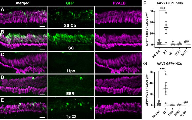Self-complementarity increased transduction efficiency of AAV2-mediated GFP expression in the organ of Corti. (A) A representative image from a neonatal cochlear explant treated with ssAAV2-CMV-GFP (SS-Ctrl) with GFP shown in green and parvalbumin (PVALB) shown in magenta. (B) A representative image from a neonatal cochlear explant treated with scAAV2-CMV-GFP which shows a large number of cells in the organ of Corti as being GFP positive. (C–E) Show images from explants treated with ssAAV2-CMV-GFP virions that were either packaged with Lipofectamine 2000 reagent (C) or pretreated with EERI (D) or Tyr23 (E). Post-hoc comparisons of each treatment group to the control group showed a significant effect of self-complementarity (F) on total numbers of GFP positive cells in the organ of Corti, and similarly a significant effect of self-complementary AAV on the numbers of GFP positive hair cells specifically (G). Error bars represent ±1 SEM, *** denotes p