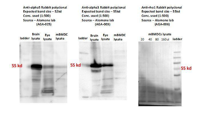 Representative Western blots show detection of weak or undetectable polypeptide bands for GABA-A R subunits (alpha3, alpha5, rho1) in mBMDCs with commercially available antibodies.