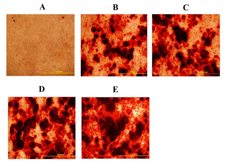Mineral deposition in mesenchymal stem cells isolated from chicken compact bone stem cells treated with different levels of 20S oxysterol for 14 days (detected by alizarin red test). Calcium deposition was increased in cells treated with 20S oxysterol compared to control cells. Cells were treated with ( A ) Control ( B ) osteogenic media (OM) containing DMEM with 10% FBS, 50 µg/mL ascorbate, 0.5 µM DXA, and 10 mM β-glycerophosphate, ( C ) OM + 2.5 µM 20S, ( D ) OM + 5 µM 20S, or ( E ) OM + 10 µM 20S. Pictures were taken by Olympus DP70 at 4X.