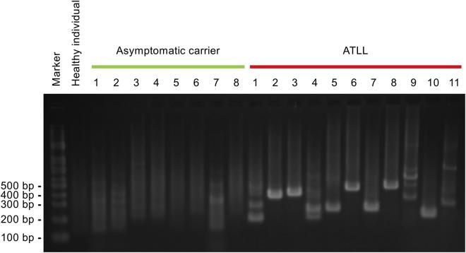 Clonal Proliferation of HTLV-1-Infected Cells Can Be Detected by Agarose Gel Electrophoresis Genomic DNA was extracted from PBMCs from asymptomatic HTLV-1 carriers (n = 8), ATLL patients (n = 10), and a healthy individual, or for ATLL case 4 from a lymph node sample, and digested with HpyCH4V. Restriction fragments containing both the 3′ LTR of a provirus and human sequences were amplified as depicted in Figure 1 B and analyzed by agarose gel electrophoresis.