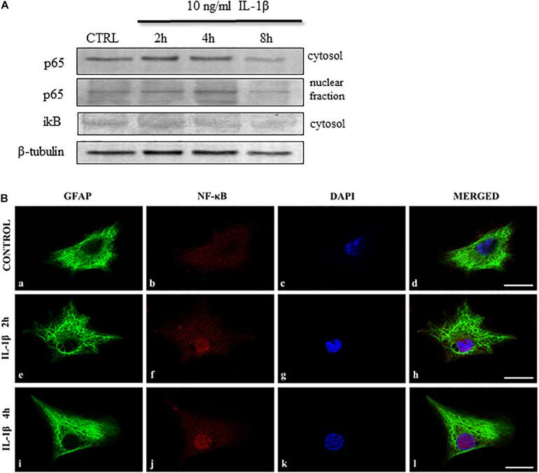 IL-1β activates the NF-κB signaling pathway in spinal astrocyte cultures. (A) Representative immunoblots show time-dependent changes of the NF-κB signaling pathway upon IL-1β stimulation of spinal astrocyte cultures. NF-κB p65 expression increase after 2 h of stimulation in the cytosol and the p65 protein appears in the nuclear fraction after 2 h of treatment. The inhibitory iκB unit is downregulated in the cytosol of the cultures upon 4 h of stimulation. (B) Micrographs of single 1 μm thick laser scanning confocal optical sections illustrating cytoplasmic expression [GFAP astrocytic marker (green)] of p65 protein in control cultures (panels a–d ). The nuclear translocation of the p65 protein was observed after 2 (panels e–h ) and 4 h (panels i–l ) of IL-1β treatment. On all images DAPI was used to label cell nuclei (blue). Mixed color (purple) on the superimposed images ( d,h,l ) indicate double labeled structures. Scale bars: 10 μm.
