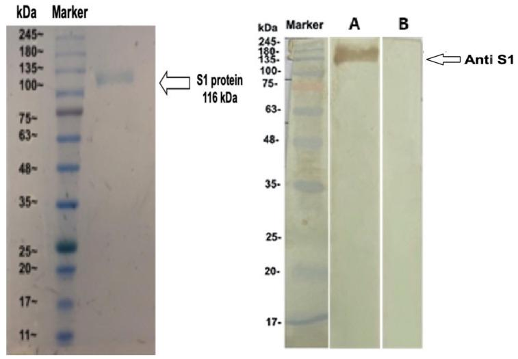 Western blot analysis of anti-MERS-COV rS1 IgY antibodies. (Left) The S1 protein of MERS-COV was subjected to SDS-PAGE under reducing conditions; (Right) Western blot analysis of the anti-S1 IgY antibody response. SDS gels were electrically transferred onto nitrocellulose membranes and probed with IgY from immunized and nonimmunized hens (marker: molecular maker; lane A: S1-immunized IgY; lane B: adjuvant-immunized IgY). The strips were processed separately and pasted beside each other for documentation.