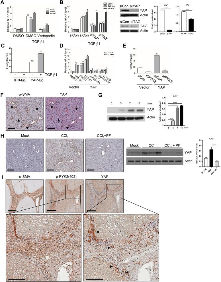 Profibrogenic TGF-β1 activates YAP in PYK2-dependent manner in vivo and in vitro. ( A ) qPCR of YAP target genes expression in activated mHSC that were pretreated with DMSO or Verteporfin before TGF-β1 stimuli, and shown as fold change (n = 3). ( B ) qPCR of YAP target genes and SMAD7 mRNA expression (shown as fold change, n = 3) and western blot of YAP and TAZ (n = 2) in LX2 transfected with siRNA of control, YAP, or TAZ, followed by TGF-β1 stimuli. ( C ) YAP reporter assay in LX2 transfected with either IFN-luc or YAP-luc (8xGTIIC-luc) followed by TGF-β1 stimuli as indicated (n = 3). ( D ) qPCR of CTGF and CYR61 mRNA expression in LX2 that were transfected with either vector alone or YAP(wt) and then followed by the treatments as indicated (n = 3). ( E ) YAP reporter assay in LX2 transfected with siRNA of either control or PYK2, followed by 2nd transfection with vector alone or YAP(wt) (n = 2). ( F ) IHC co-staining of α-SMA and YAP in paraffin liver sections of CCl 4 -treated mouse (n = 4). Arrows indicate the co-localized regions. ( G ) Western of YAP expression in primary mHSCs at the indicated times on in vitro culture. ( H ) IHC of YAP in CCl 4 -treated mouse livers (n = 3) and western blot of YAP expression in livers from O + V (n = 3), O + CCl 4 (n = 3), CCl 4 + PF (n = 3). ( I ) IHC of α-SMA, p-PYK2(402), and YAP expression in serial liver sections from patients with cirrhosis (n = 4). The enlarged insets were shown below. The luciferase activities were normalized with co-transfected renilla luciferase activity. Scale bar: 200 μm in ( F , H ), 500 μm in ( I ), and 200 μm in insets of ( I ), Student's t-test; * p