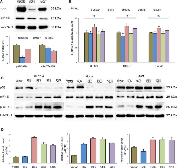 Oncogenic E6 proteins increase eIF4E phosphorylation (Serine‐209). (A) Steady‐state levels of p53, and the total and phosphorylated (Ser‐209) forms of the eIF4E protein were evaluated via immunoblot assays in HEK293 (p53: WT), MCF7 (p53: WT), and HaCat (p53: mutated) cells. Band intensity was quantified by the densitometric analysis using imagej software. At least three experiments were performed for analysis. Differences were compared by one‐way ANOVA. (B) Expression level of eIF4E mRNA in stable cells transfected with different E6 constructs (HPV‐6 E6, HPV‐16 E6, HPV‐18 E6, and HPV‐52 E6) was evaluated by real‐time RT–PCR. Control cells were transfected with empty vector (vector). Values represent mean ± SD of at least three experiments. Differences between groups were compared by one‐way ANOVA with Dunnett's post hoc test (* P > 0.05; ns: no significance). (C) Total lysates of HEK293, HaCat, and MCF7 cells transfected with the different E6 constructs were resolved by SDS/PAGE and immunoblotted with antibodies against p53, total and phosphorylated forms of eIF4E proteins. GAPDH was employed as a loading control for RT–PCR and western blot analysis. D, Relationship between total and phosphorylated levels of the eIF4E protein in transfected cells was evaluated by densitometric analysis. At least three experiments were performed for the evaluation.