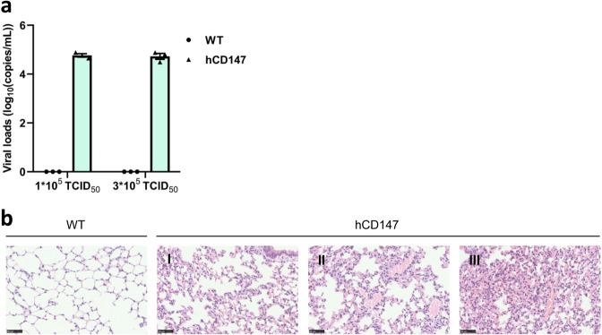 SARS-CoV-2 invades lung tissues of hCD147 mice and causes pathologic changes. a The WT mice and hCD147 mice were infected with SARS-CoV-2. At 48 h after infection, the viral load of lung tissues was detected with quantitative PCR. b The histopathological changes of lung tissues were detected in WT mice and hCD147 mice by HE staining. Scale bars: 50 μm