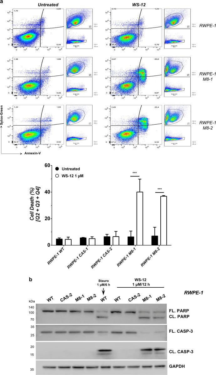 RWPE-1 response to TRPM8 agonist WS-12. a Cell death response by FACS (Annexin-V; Sytox-Green) in RWPE-1 cells expressing endogenous, increased (M8) or knocked-out (CAS) TRPM8 levels following 12 h WS-12 (1 μM) administration. Quantification is reported as percentage of total cells (lower panel). b Western blotting analysis showing molecular signature of apoptotic cell death (Caspase-3 and PARP cleavage). Staurosporine was used as positive control. Error bars, mean ± SD. Experiments were performed in triplicate; data were analyzed using a two-tailed Student's t -test. *** P ≤ 0.001.