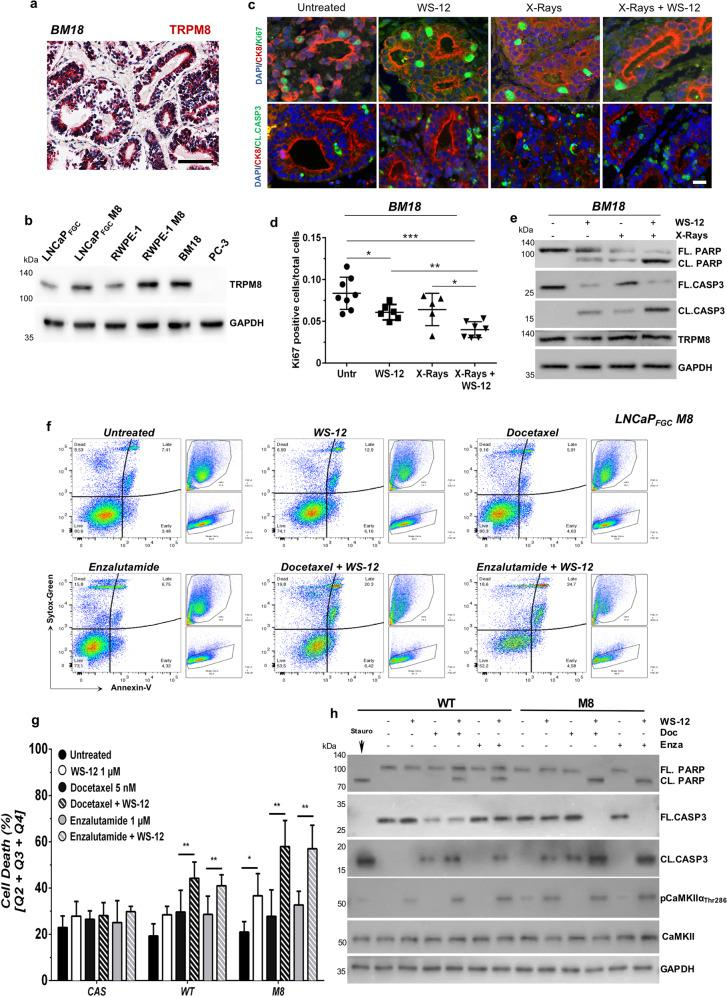 TRPM8 immunoscoring predicts X-rays + WS-12 efficacy. a TRPM8 immunostaining of BM-18 PDX. Scale bars, 100 μm. b Western blotting analysis shows comparable expression levels of TRPM8 in BM-18 and RWPE-1 M8 cells. c Immunofluorescence images showing co-staining of Ki-67 (green, upper panel) or Cleaved Caspase-3 (green, lower panel) with CK8 (red) and DAPI (blue). d Percentage of Ki-67 positive cells on a total of 30,000 cells in at least five different areas of the sample. Scale bars, 50 μm. e Western blotting analysis in BM-18 PDX tissues slices upon WS-12 (1 μM, 48 h), X-rays (10 Gy), or X-ray + WS-12 treatments showing molecular hallmarks of apoptotic cell death (Caspase-3 and PARP cleavage). Error bars, mean ± SD. Data were analyzed using a two-tailed Student's t -test. * P ≤ 0.05; ** P ≤ 0.01; *** P ≤ 0.001. f Representative flow cytometry analysis of apoptotic cell death by Annexin-V/Sytox-Green labeling in LNCaP FGC M8 cells treated with WS-12 (1 μM), docetaxel (5 nM), enzalutamide (1 μM), WS-12 + docetaxel, or WS-12 + enzalutamide for 48 h. Untreated cells were used as control. g Quantification of dying cells in LNCaP FGC expressing endogenous (WT), increased (M8) or knocked-out (CAS) levels of TRPM8 treated as indicated in f . h Western blotting analysis of the indicated samples showing CaMKIIα activation (phosphorylation of Thr286) following WS-12 treatment of LNCaP FGC WT and M8 cells and the molecular signature of apoptotic cell death (Caspase-3 and PARP cleavage) upon treatment with combination of WS-12 with docetaxel or enzalutamide. Error bars, mean ± SD. Experiments were performed in quadruplicate; data were analyzed using a two-way ANOVA test. ** P ≤ 0.01.