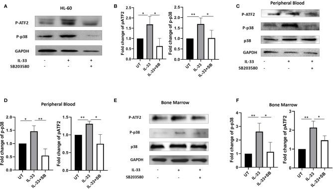 <t>IL-33</t> activates p38 MAPK pathway in primary AML samples. (A, B) The AML cell line HL-60 were treated with IL-33 (100 ng/ml) or in combination with SB (20 µM). P-p38, pATF2, or GAPDH protein expression was probed by Western blot analysis. The bar graph shows the quantification of p-p38 and pATF2 protein in all groups. (C–F) PBMCs and BMMCs from patients diagnosed with AML were incubated for 72 h with IL-33 (100 ng/ml) or in combination with SB (20 µM). P-p38, p38, pATF2, or GAPDH protein expression was probed by Western blot analysis. The bar graphs show the quantification of p-p38 and pATF2 protein in all groups. n≥3 ; * P