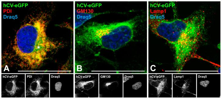 Trafficking of eGFP-tagged full-length cathepsin V in thyroid epithelial cells. Confocal laser scanning micrographs of Nthyori-CV cells expressing hCV-eGFP chimeras (( A – C ), green signals) after immunolabeling with antibodies against PDI ( A ), GM130 ( B ) and Lamp1 ( C ) proteins residing in the ER, at the cytosolic face of Golgi cisternae and vesicles, and in endo-lysosomes, respectively (red signals). Yellow signals are indicative of co-localization. Nuclei were counter-stained with Draq5™ (blue signals). Single-channel fluorescence micrographs are depicted in the bottom panels as indicated. Scale bars represent 50 μm.