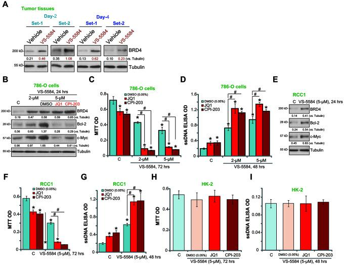 """BRD4 inhibition potentiates VS-5584-induced RCC cell death and apoptosis. The 786-O xenograft tumor-bearing nude mice were administrated with vehicle control or VS-5584 (20 mg/kg, oral administration, daily), at treatment Day-2 and Day-4, 4 h after the VS-5584 or vehicle administration, two tumors (""""Set-1/Set-2"""") of each group were isolated, expression of BRD4 and Tubulin in tumor lysates was shown ( A ). 786-O cells ( B ) and primary human RCC cells (""""RCC1"""", E ) were treated VS-5584 (or plus BRD4 inhibitors, B ) for 24 h, listed proteins in total cell lysates were tested by Western blotting. 786-O cells ( C , D ), RCC1 primary cancer cells ( F , G ) or HK-2 cells ( H , I ) were pretreated with JQ1 (500 nM) or CPI203 (500 nM) for 30 min, followed by VS-5584 (2/5 μM) treatment for 48/72 h, cell survival and apoptosis were tested by MTT ( C , F , H ) and ssDNA ELISA ( D , G , I ), respectively. The listed proteins were quantified ( B , E ). Data were presented as mean ± standard deviation (SD, n=5). * p"""