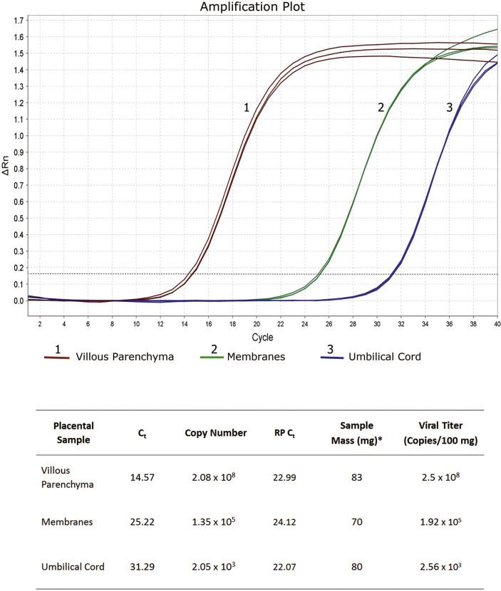 SARS-CoV-2 qRT-PCR Results in Placental Samples. Reactions for all samples were run in triplicates with consistent results. C t - cycle threshold: reflects the number of PCR cycles before the beginning of the exponential phase of the amplification curve. The lower the C t value, the higher the quantity of the target template in the sample. RP C t - C t values of the control RNase P primer/probe set. C t of included viral controls were also obtained (not shown) and along with the standard curve generated in each reaction were used for viral copy calculations. *FFPE tissue samples were punched out the paraffin block and weighted, after removal of excess paraffin and before RNA extraction.