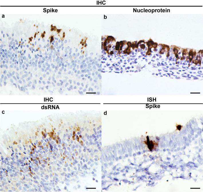Immunohistochemistry and in situ hybridisation detection of SARS-CoV-2 and RNA on infected ferret tissues. Detection of spike protein (a) , nucleoprotein (b) and dsRNA antigens (c) and spike RNA (d) labelling. Tissue shrinkage artefact with ISH pre-treatment (d) . Scale bars, 20 µm.