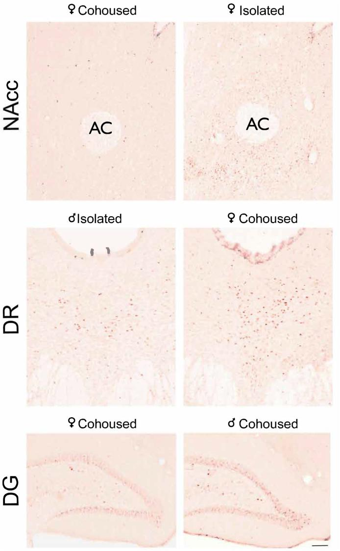 Representative images of immunostaining of Egr-1 in the NAcc, DR, and DG. Treatment and sex are depicted above each image. NAcc, nucleus accumbens, AC, anterior commissure, DR, dorsal raphe, DG, dentate gyrus of the hippocampus. Scale bar = 100 μm.