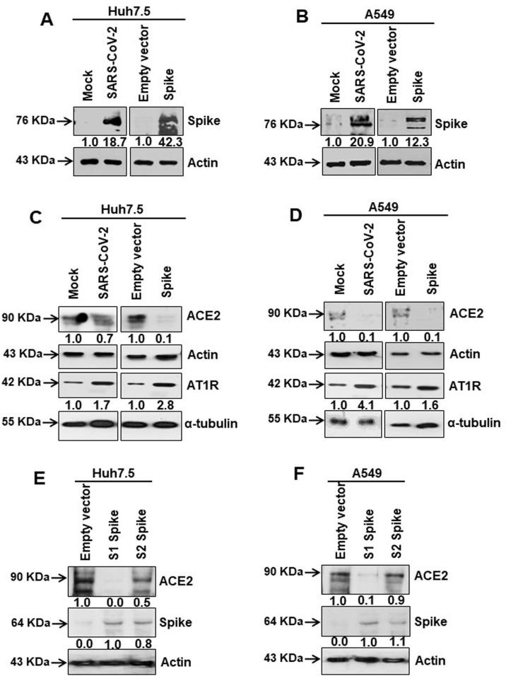 SARS-CoV-2 spike protein inhibits ACE2 expression. (A, B) Western blot analysis of SARS-CoV-2 spike protein expression in Huh7.5 and A549 cell lysates prepared after 48 h of mock- or SARS-CoV-2 virus infection, or transiently transfected with an empty vector or SARS-CoV-2 spike gene construct. (C, D) Western blot analysis of ACE2 and AT1 receptor expression in Huh7.5 and A549 cell lysates prepared after 48 h of mock- or SARS-CoV-2 virus infection, or transiently transfected with empty vector or SARS-CoV-2 spike gene construct. (E, F) Western blot analysis of ACE2 expression in Huh7.5 and A549 cell lysates prepared after 48 h of transfection of empty vector or SARS-CoV-2 spike S1 or S2 gene construct. Expression level of actin or tubulin in each lane from the same gel is shown as a total protein load for comparison.