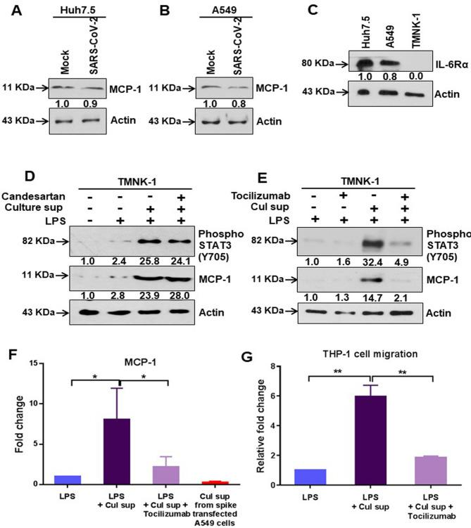 IL-6 trans-signaling induces MCP-1 expression. (A, B) Western blot analysis of MCP-1 expression in Huh7.5 and A549 cell lysates prepared after 48 h of mock-treated or infected with SARS-CoV-2 virus. (C) Western blot analysis for IL-6Rα expression in Huh7.5, A549, or TMNK-1 cell lysates. (D) Western blot analysis of phospho-STAT3 (Tyr705) and MCP-1 expression in TMNK-1 liver endothelial cell lysates prepared after treated with or without culture supernatant from SARS-CoV-2 spike gene expressed A549 cells in presence or absence of Candesartan cilexetil and LPS. (E) Western blot analysis for phospho-STAT3 (Tyr705) and MCP-1 expression status in TMNK-1 liver endothelial cell lysates prepared after treatment with LPS and culture supernatant from SARS-CoV-2 spike gene expressed A549 cells in the presence or absence of Tocilizumab. Expression level of actin in each lane from the same gel is shown as a total protein load for comparison. (F) The extra-cellular level of MCP-1 was measured by ELISA in culture supernatant of TMNK-1 cells after treatment with LPS alone or together with culture supernatant from SARS-CoV-2 spike gene expressing A549 cells in the presence or absence of Tocilizumab. The MCP-1 expression level in the culture supernatant from SARS-CoV-2 spike gene expressing A549 cells was also detected. (G) Comparative analysis of cellular migration of human monocytes (THP-1) in the presence of culture supernatant from TMNK-1 cells treated with LPS, and from culture supernatant of SARS-CoV-2 spike gene expressed A549 cells in the presence or absence of Tocilizumab. The results are presented as mean ± standard deviation. '*' ( p