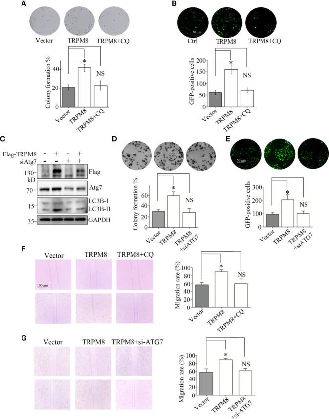 Autophagy is essential for the regulatory effect of TRPM8 on the proliferation and migration of breast cancer cells. (A, B) Cell proliferation experiments. MCF7 cells were transfected with TRPM8 constructs. After 24 h of transfection, cells were treated with 10 M CQ. (A) The in vitro colony formation assay. Cells were further cultured in growth media for 7-10 days to form the colonies. The colonies were washed with ice-cold PBS three times, stained with trypan blue, and counted (N = 3). (B) Ki67 expression was detected by immunostaining (N = 3). (C) MDA-MB-231 cells were transiently transfected with siRNA against human ATG7 (siATG7) and a Flag-TRPM8 construct. After 48 h of transfection, protein lysates were extracted for WB analysis to determine the effect of TRPM8 overexpression on basal autophagy in the presence of ATG7 knockdown (N =3). (D, E) Similar experiment was performed in MDA-MB-231 cells transfected with siATG7 and a Flag-TRPM8 construct. (N = 3). (F, G) Cell migration determined by wound healing assay. (F) MCF7 cells were transfected with the TRPM8 constructs for 24 h and scratched with a sterile 10 μl tip. After three washes with 1× PBS, the cells were cultured for 24–72 h in serum-free medium in the presence of 10 μM CQ (N = 3). (G) Similar wound healing assay as in (F) but with MDA-MB-231 cells transfected with siATG7 and a Flag-TRPM8 construct (N = 3). N represents the number of replicate experiments. *P