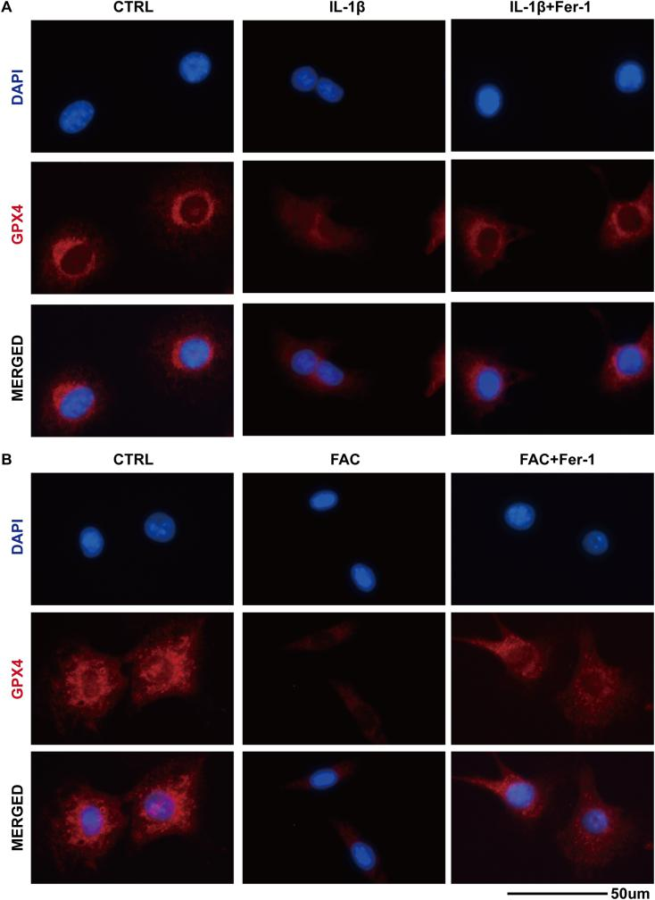 (A) The total GPX4 protein level in the chondrocytes treated with IL-1β or in combination with ferrostain-1 was evaluated by immunofluorescence staining. The nuclei were stained with DAPI (B) The total GPX4 protein level in the chondrocytes treated with FAC or in combination with ferrostain-1were evaluated by immunofluorescence staining. The nuclei were stained with DAPI.