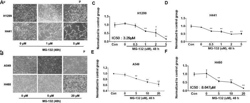 MG-132 induces cell death in NSCLC cells. (A) H1299 and H441 cells were pictured under a phase-contrast microscope after treatment with MG-132 at different concentrations (0, 1, and 5 μM) for 48 h. (B) A549 and H460 cells were pictured under a phase-contrast microscope after treatment with MG-132 at different concentrations (0, 5, and 20 μM) for 48 h. Shown are representative images from three independent experiments. Scale bar: 400 μm. (C, D) Cell viability of H1299 and H441 cells were evaluated by cell counts. (E, F) Cell viability of A549 and H460 cells were evaluated by cell counts. Results are expressed as percent of cell viability normalized to control cells. The bar graphs represent mean with SD from three independent experiments. * p