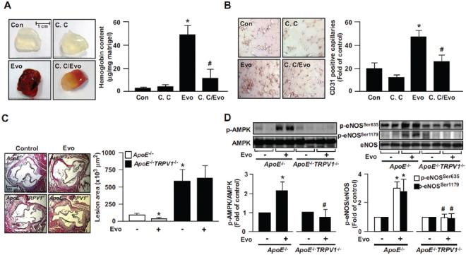 Role of AMPK in evodiamine-induced angiogenesis in WT mice and retardation of atherosclerosis in ApoE −/− mice. (A) Eight-week-old male WT mice were subcutaneously injected with matrigel plugs containing heparin (50 U/mL) with or without evodiamine (1 µmol/L) or <t>compound</t> C (10 µmol/L). At 7 d postadministration, plugs were removed and photographed, and the hemoglobin content was analyzed. Data are mean ± SD from eight mice. * P